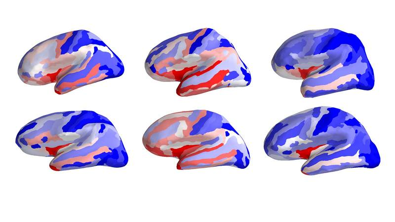 Inflated surfaces of brains showing regional cortical thickness in a blue-white-red colormap